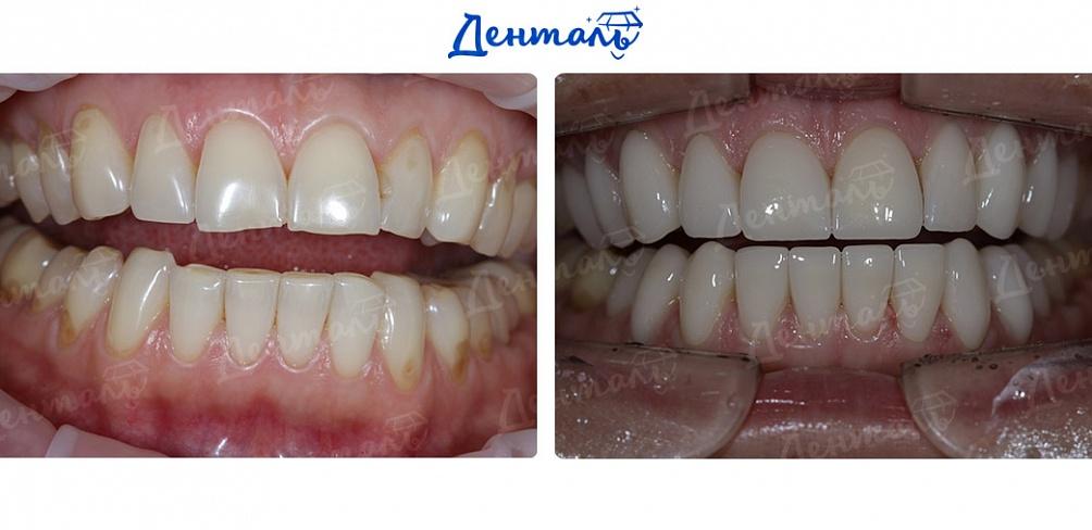 Стоматология лечение зубов центр